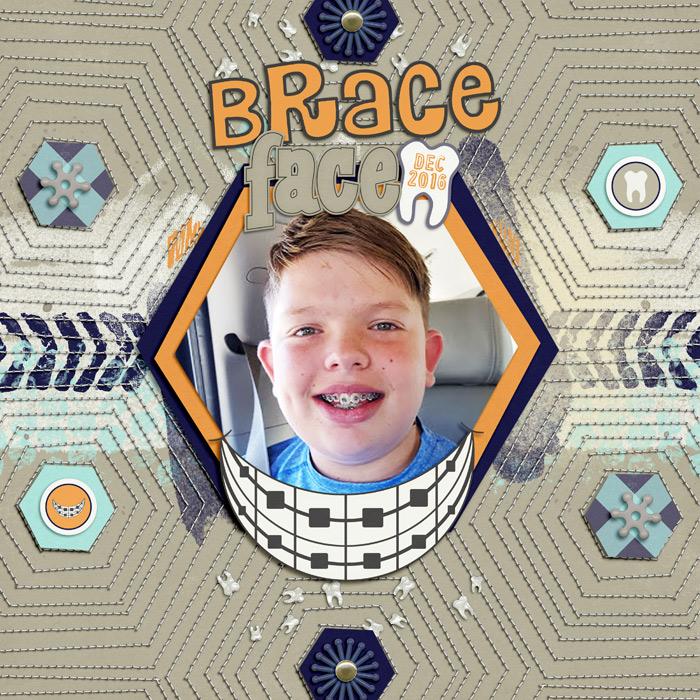 SSD-braceface700